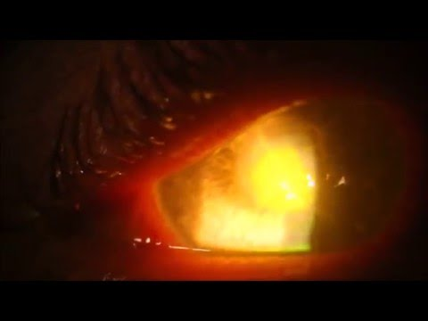 Fungal Ulcer- Pus in the cornea- Doctor scrapes eye! Be careful with contact lens wear! Ouch-Gross!!