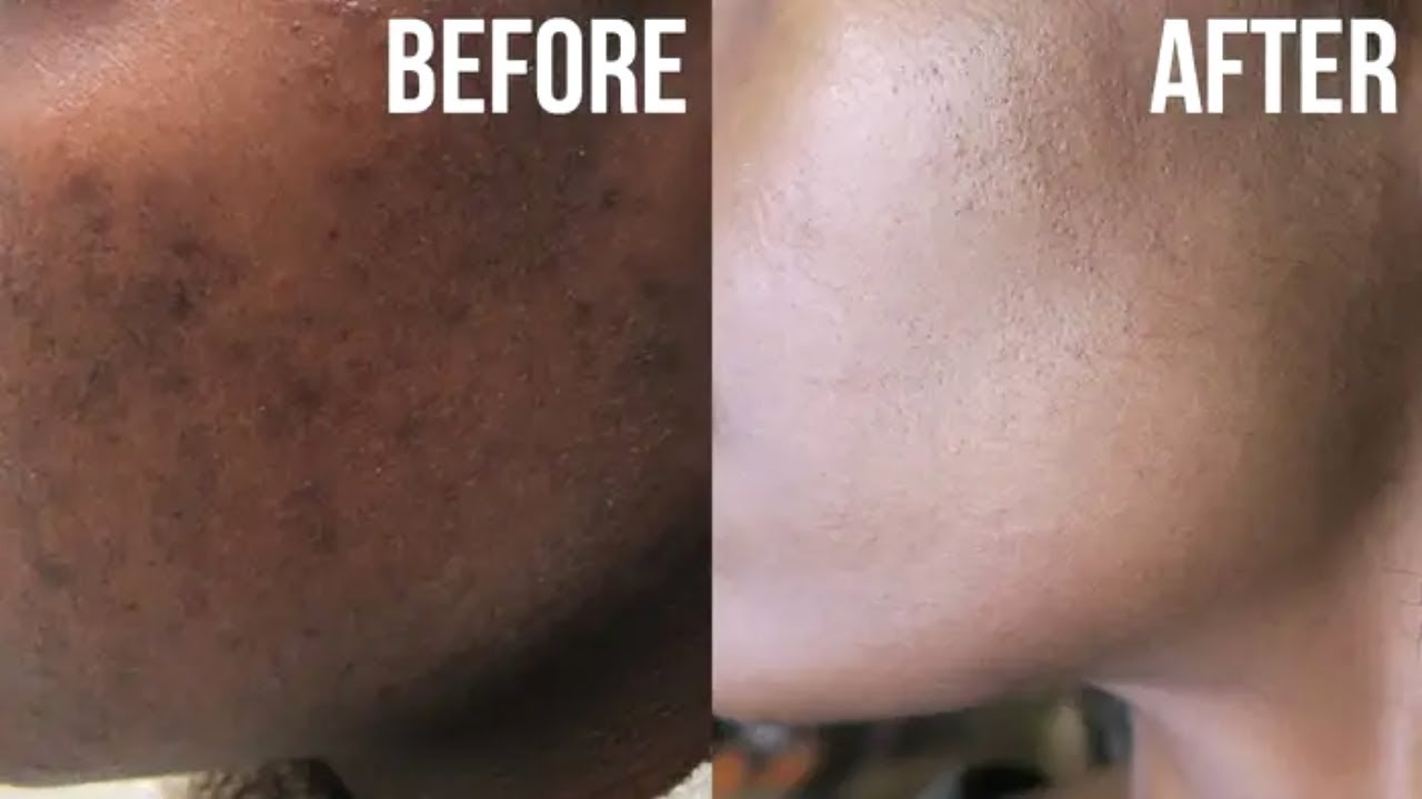 treatment for pigmentation on face