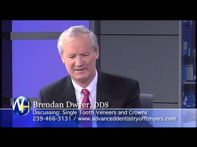 Single Tooth Veneers and Crowns, Ft. Myers Dentist, Brendan M. Dwyer, DDS