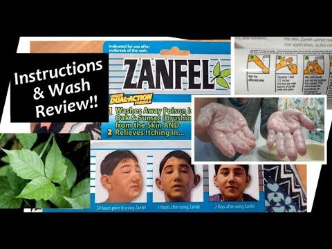 Zanfel Poison Ivy Treatment: Directions & Wash Review!! Treating Poising Ivy!!