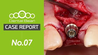 [ENG] Ridge splitting by mass \u0026 chisel, Bone graft(CGF), Sling suture, Immediate loading