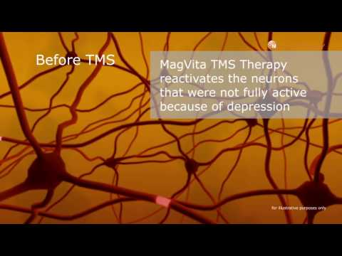 TMS for depression treatment: Introduction for patients
