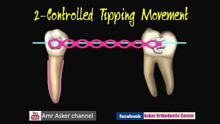 Types of Orthodontic Tooth movement-Asker Orthodontic Center,,,Amr Asker Orthodontics