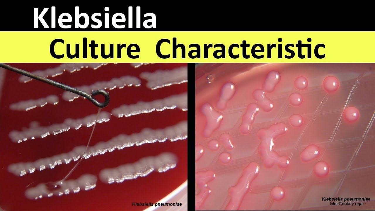 Klebsiella pneumoniae sintomas