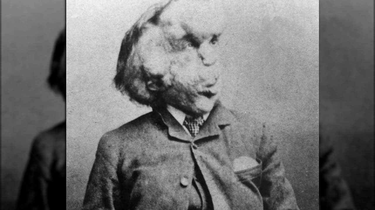 The Sad And Tragic Story Of Joseph Merrick