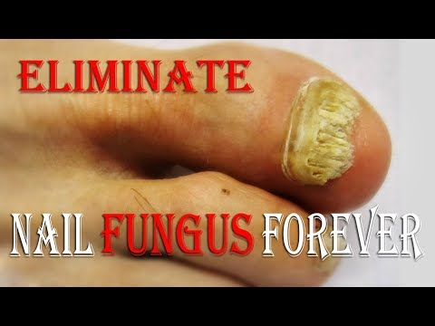 How To Get Rid Of Toenail Fungus Without Medication – How To Cure Toenail Fungus At Home ¤ 100%