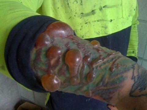 Worst tattoo laser removal ever youtube for I want to remove my tattoo at home