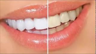 улыбка на миллион как отбелить зубы в домашних условиях за 3 минуты