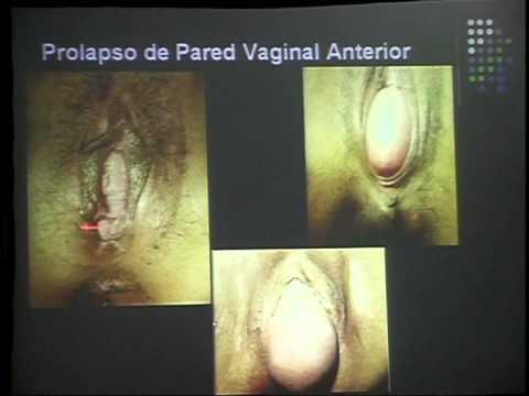 Oopi Animated Gif Pornhubcom