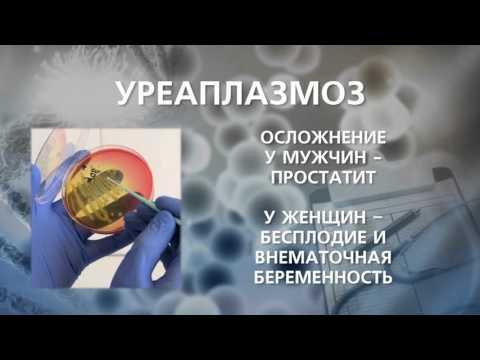 Микоплазмоз, уреаплазмоз: признаки, диагностика, лечение