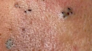 Blackheads .🌹Thank you for watching