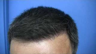 Hair transplant by Dr Wong - 2811 Grafts - 1 Session