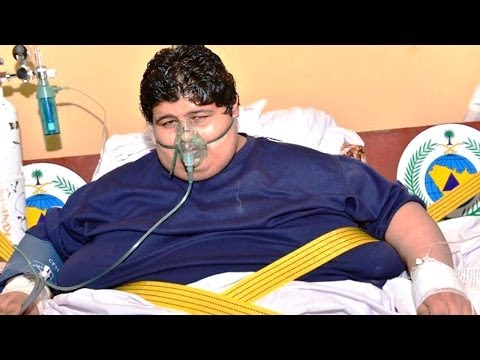 1300 Pound Teen Ordered By King To Lose Weight