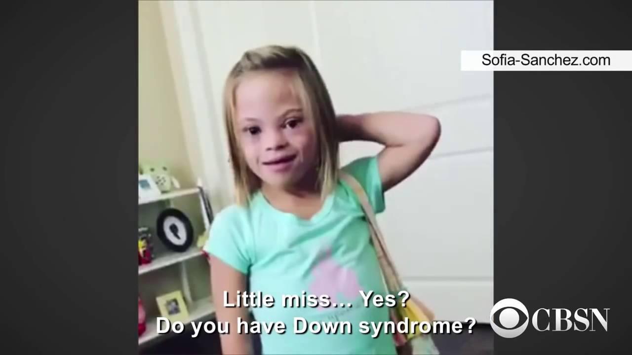 Синдром софии