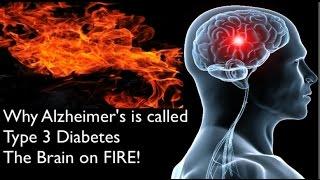 Alzheimers Disease called type 3 diabetes   Brain on Fire