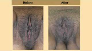 Repeat youtube video Plastic Surgery - female genitals