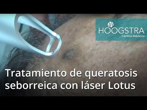 Tratamiento de queratosis seborreica con láser Lotus (18094)