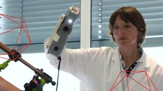 Using Artec 3D Scanners for Orthotics and Prosthetics