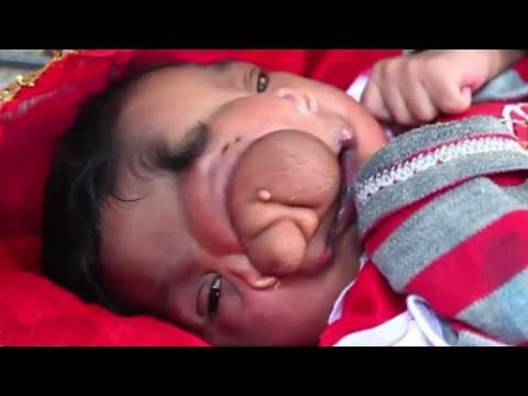 【閲覧注意】象の鼻を持つ赤ちゃん【奇形】