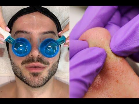 Male Detox Pore Cleansing Facial {Combo Skin}    Jadeywadey180