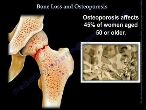 Poliklinika Harni - Koštana oštećenja različita kod anoreksije i atletske amenoreje