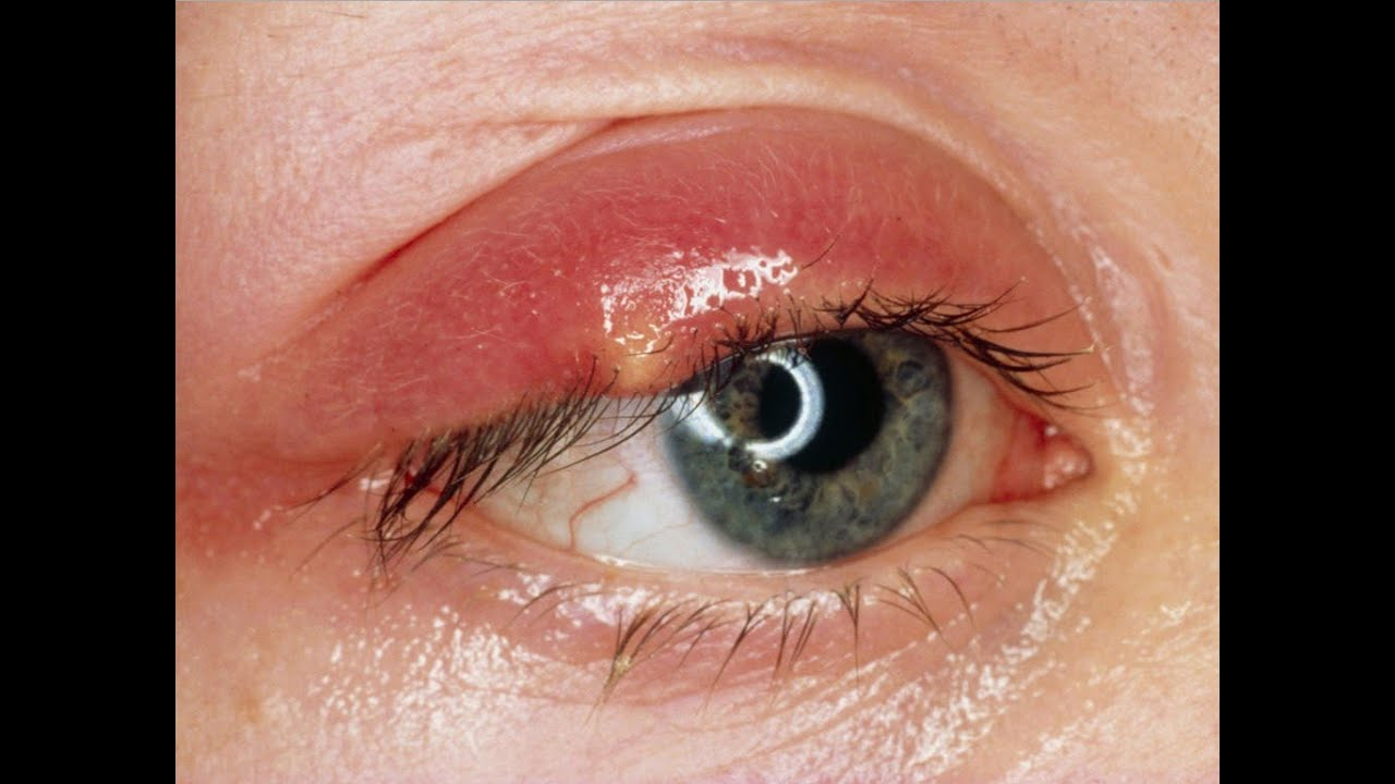Home Remedies For Eyelid Cysts Chalazions Chalazion