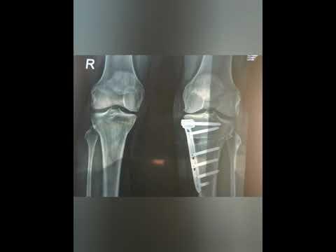 ozokerită cu artroza articulației cotului