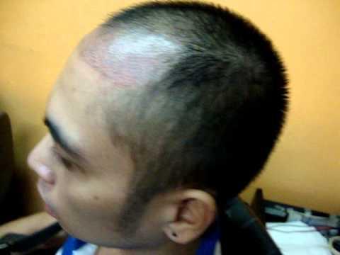 micro hair tattoo manila philippines youtube
