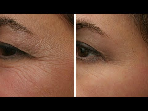 How To Remove Under Eye Wrinkles Fast And Naturally