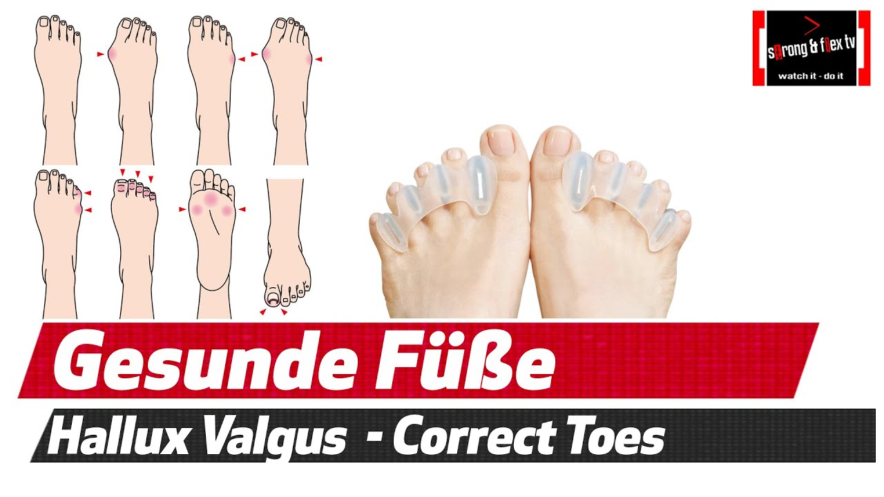hallux valgus plattf e usw gesunde f e dank correct toes youtube. Black Bedroom Furniture Sets. Home Design Ideas