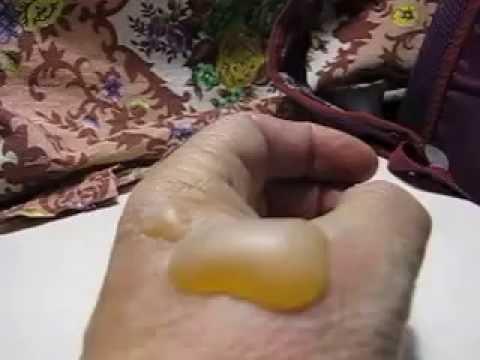 Ожог руки: что делать и как лечить
