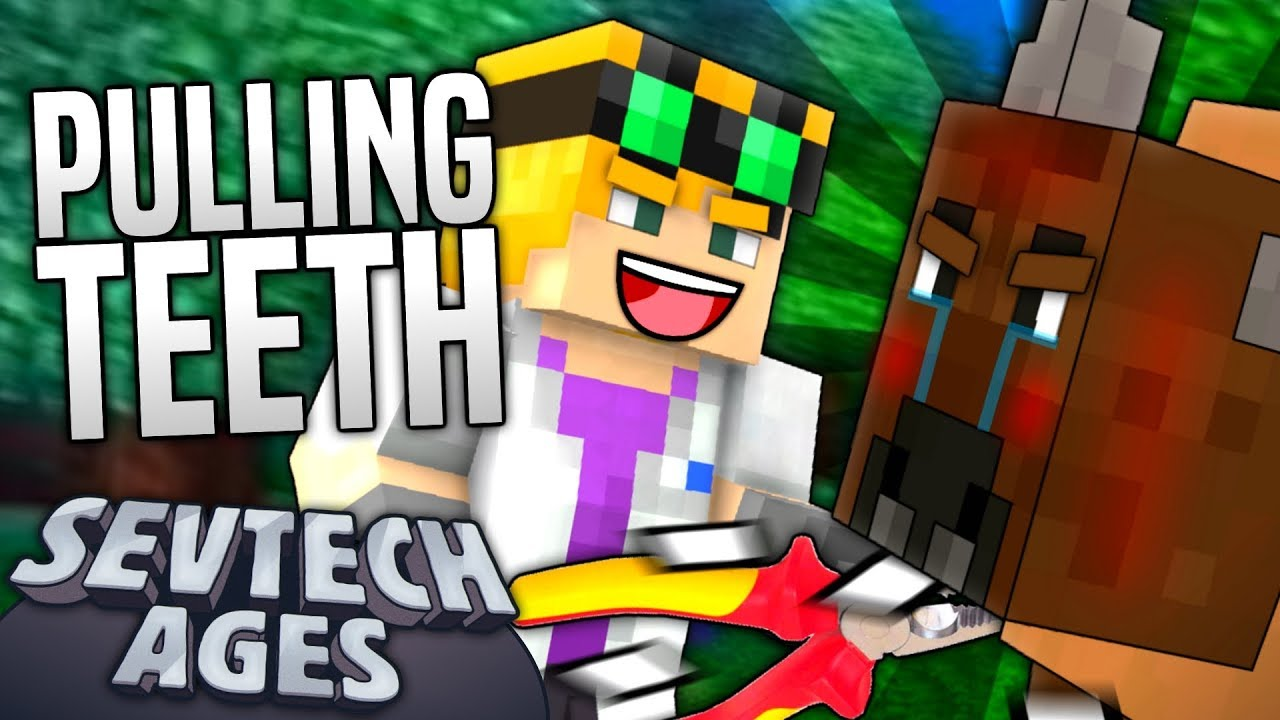 Minecraft - PULLING TEETH - SevTech Ages #17