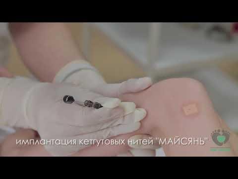 Имплантация кетгутовых нитей МАЙСЯНЬ