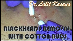 BLACKHEAD EXTRACTION WITH COTTON BUDS PART   1
