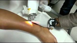 Lazer ile dövme silme işlemi nasıl yapılır?