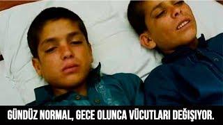 Gündüz Normal 2 Erkek Kardeş Gibi Görünüyorlar, Ancak Gece Olunca Vücutları Değişiyor