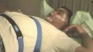 Sleep Apnea Example