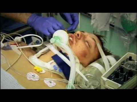 Drink Driving Car Crash The Hospital Youtube