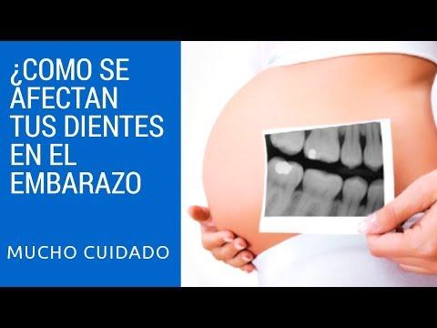 ¿Como se afectan los dientes en el embarazo?