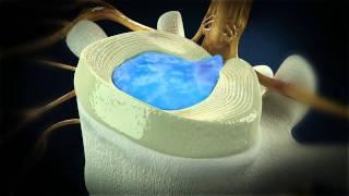 Hersteller und Klinik zeigen endoskopische Bandscheiben-OP Thumbnail
