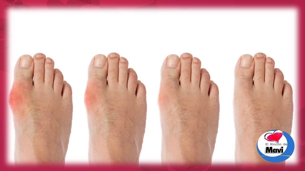 Aconsejen el medio del hongo de los pies