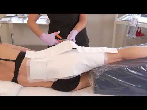 HK Post Operative Outer Thigh, Hips and Waist Liposuction