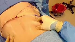 A bra line back lift was preformed on this patient to remove all lo...