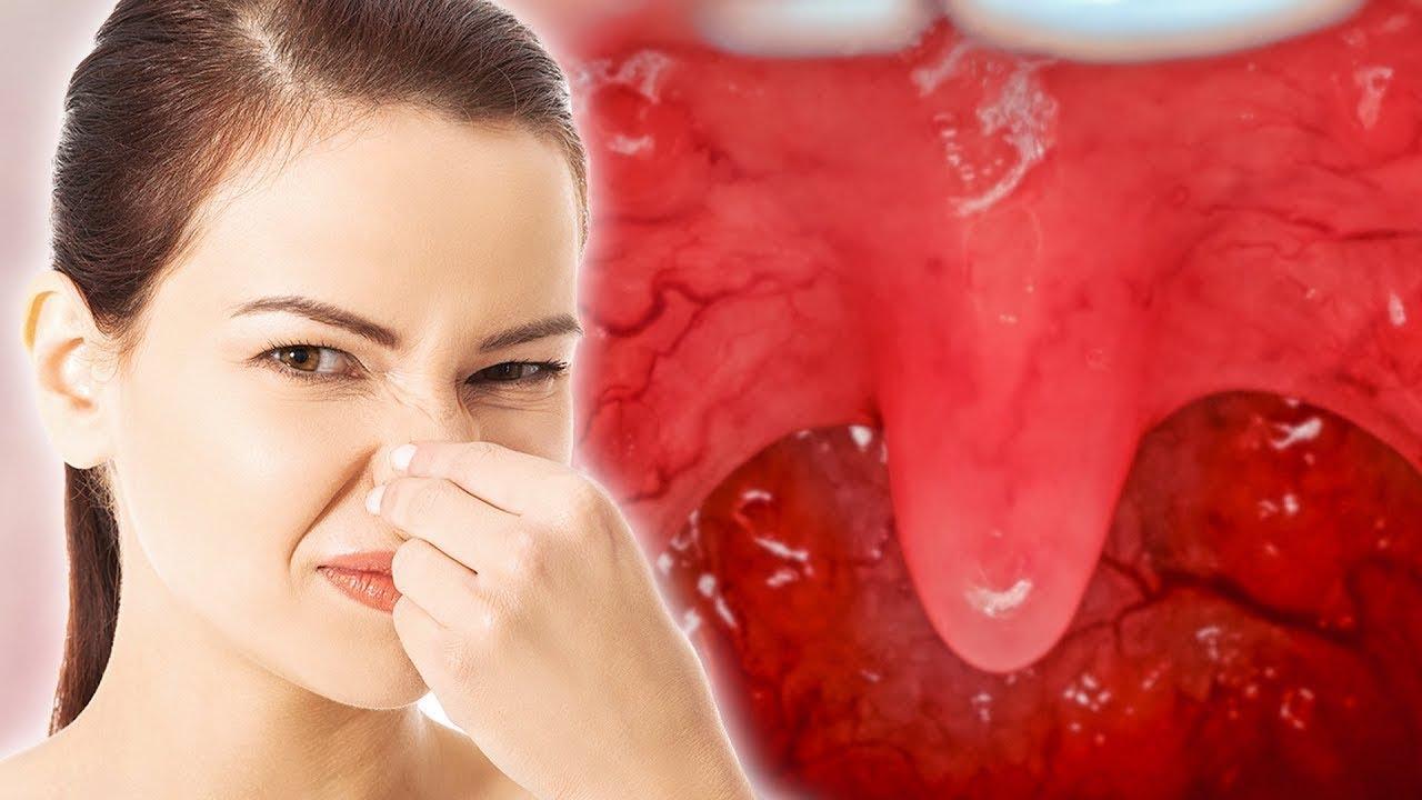 15 Внезапных «За» и «Против» от Неприятного Запаха Изо Рта