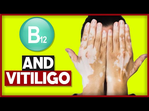 Vitiligo and B12