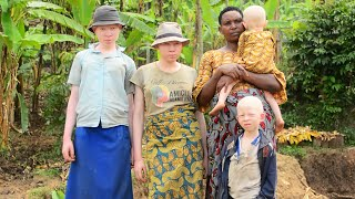 I Will Never Give Up On My Albino Children | BORN DIFFERENT