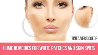 Home Remedies for White Patches and Skin Spots (Tinea Versicolor)