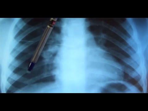 Какова на снимке разница между туберкулезом и инфаркт пневмонией