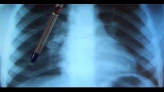 видео Как отличить бронхит от пневмонии, может ли перейти, признаки и лечение, антибиотики, диф диагностика