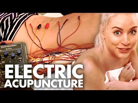 Getting ELECTRO Acupuncture! (Beauty Trippin)